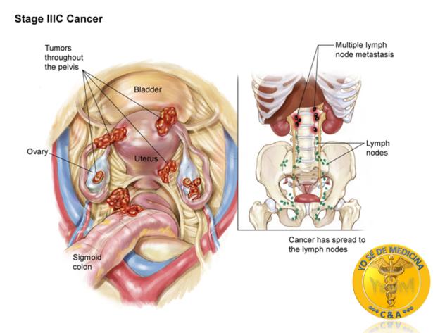 cancer de ovario III C yo se de medicina